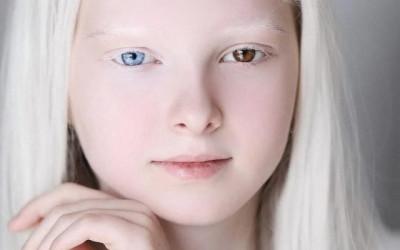 Unik, Gadis Chechen ini Punya Wajah Seperti Peri